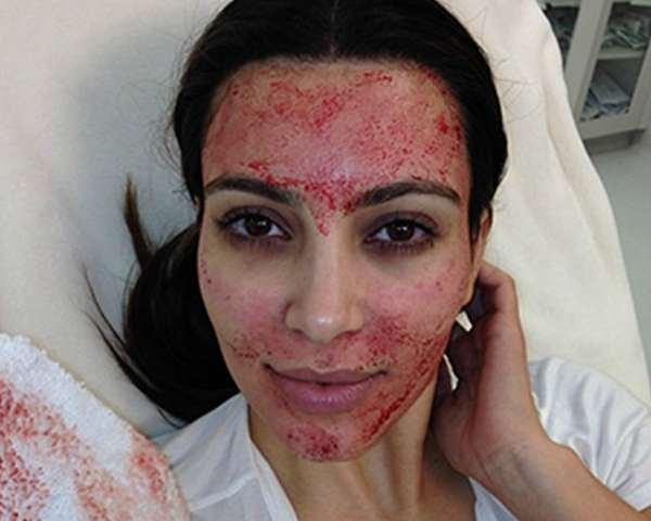 Θεραπεία του «Δράκουλα»: Η νέα μόδα που σαρώνει και … ανανεώνει το δέρμα!