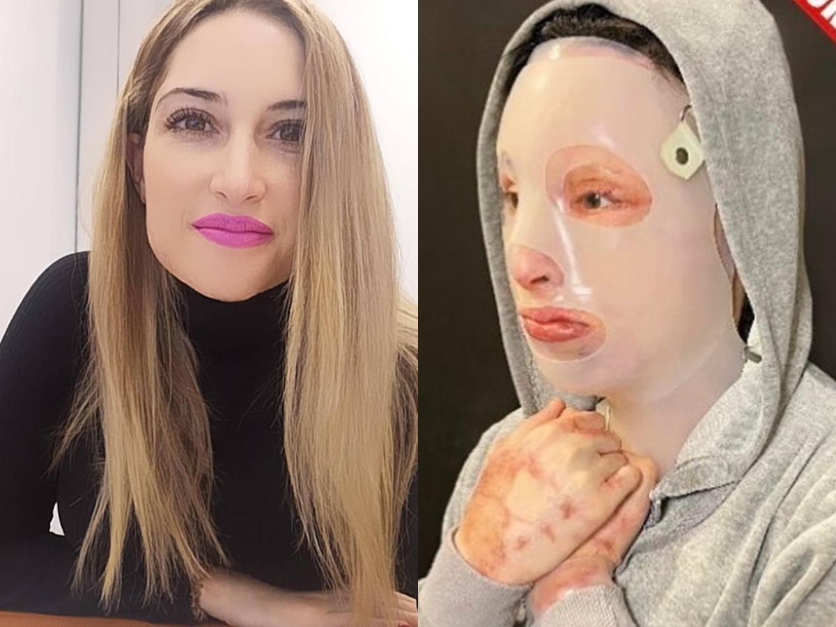 Επίθεση με βιτριόλι: «Η Ιωάννα είναι πάρα πολύ δύσκολο να επανέλθει… Το ένα της αφτί έχει εξαφανιστεί και το μάτι της έχει πρόβλημα. Θα κάνει άλλα 10 χειρουργεία»
