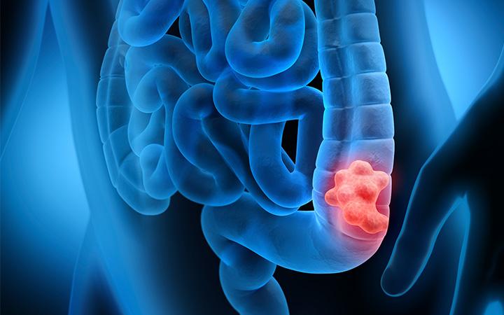 Τι προκαλεί τον καρκίνο στο παχύ έντερο;